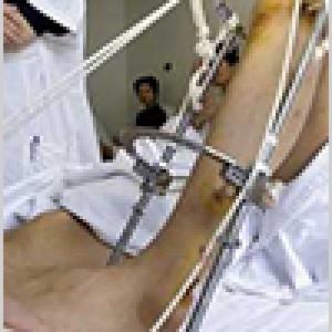 Limb-Lengthening-Height-Gain-Surgery